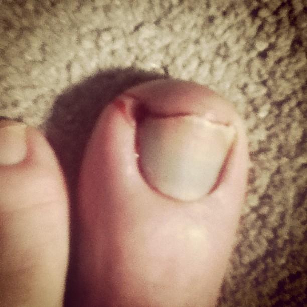 left toe bleeding