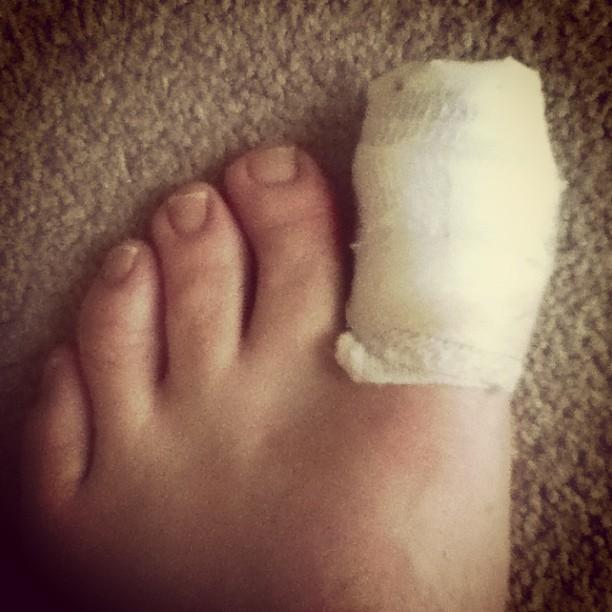 my left toe